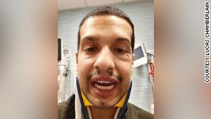 San Francisco Uber driver Lucas Chamberlain shows the injuries he received after an argument with a patron turned violent on March 15, 2020.